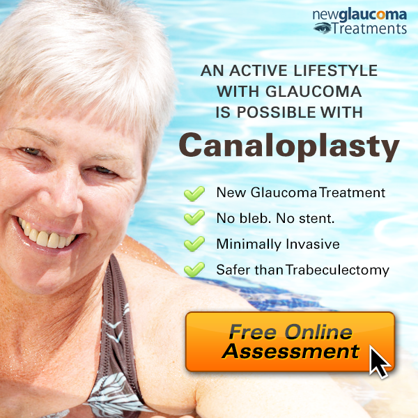 Canaloplasty glaucoma surgery online assessment