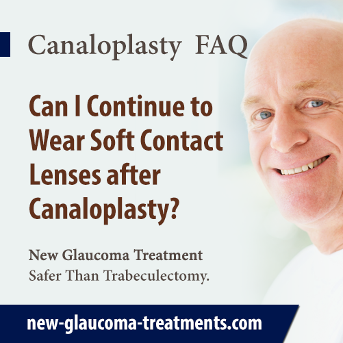Can I Continue To Wear Soft Contact Lenses After Canaloplasty?
