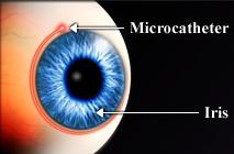 canaloplasty-new-glaucoma-t