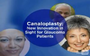 Canaloplasty Video Thumbnail