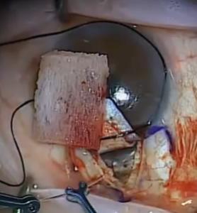 Canaloplasty Glaucoma Surgery Catheterization