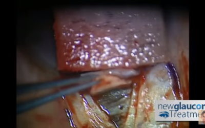 Canaloplasty Glaucoma Surgery Using Mastel Instruments: Part 2 – Dissecting The Deep Flap