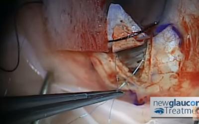 Canaloplasty Glaucoma Surgery Using Mastel Instruments: Part 4 – Suture