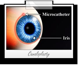 Glaucoma Treatment Guidelines_Canaloplasty