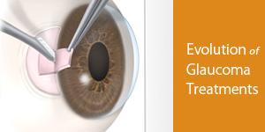 Glaucoma Treatment Evolution