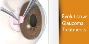 glaucoma-treatment-evolutio