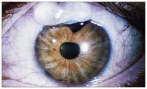 Glaucoma Surgery Bleb