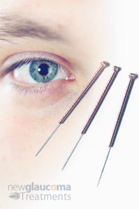 Acupuncture A Natura Treatment For Glaucoma