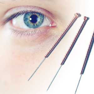 Is Acupuncture A Natural Treatment For Glaucoma Featured