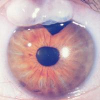 Bleb on The Eye