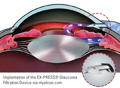 EX-PRESS® Glaucoma Filtration Device