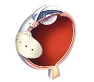 BAERVELDT Glaucoma implant