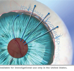 ​Hydrus™ Microstent – A Promising Minimally Invasive Glaucoma Surgery