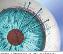 Hydrus™ Microstent – A Promising Minimally Invasive Glaucoma Surgery