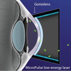 Types Of Laser Trabeculoplasty (LT)