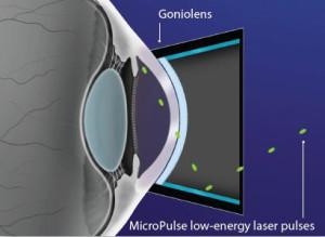 Micropulse Laser Trabeculoplasty (MLT)