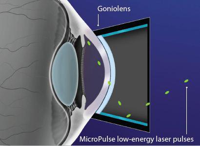 Types Of Laser Trabeculoplasty Lt New Glaucoma