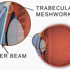Introduction To Laser Trabeculoplasty (LT)