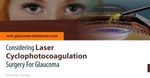 Considering Laser Cyclophotocoagulation