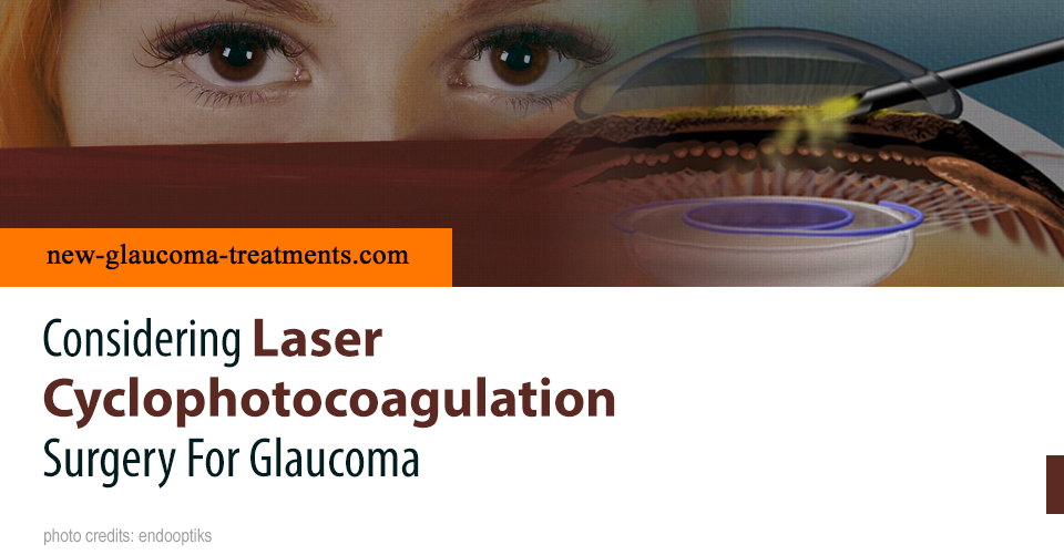 Considering Laser Cyclophotocoagulation