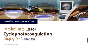 Laser Cyclophotocoagulation Surgery For Glaucoma
