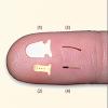 Suprachoroidal Implants For Glaucoma_