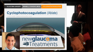 Cyclophotocoagulation and Trabectome for Glaucoma