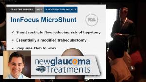 Subconjunctival Implants for Glaucoma InnFocus Micro shunt, Xen 45 Gel Stent