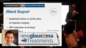 Suprachoroidal Implants for Glaucoma Solx, Starflo, iStent Supra, Cypass Microstents