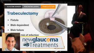 Trabeculectomy