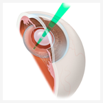 Laser Therapies for glaucoma