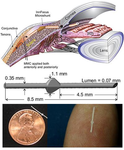 InnFocus MicroShunt for Glaucoma