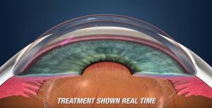 Pattern Scanning Laser Trabeculoplasty (PSLT) Treatment for Glaucoma