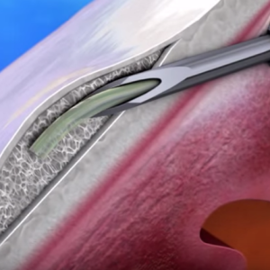 XEN Gel Stent For Glaucoma