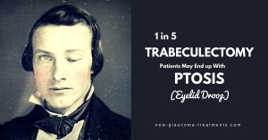 1 in 5 Trabeculectomy Patients May End up With Ptosis (Eyelid Droop)