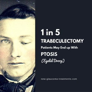 Trabeculectomy Ptosis (Eyelid Droop)