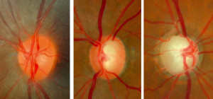 Normal optic disc and glaucomatous optic nerve heads