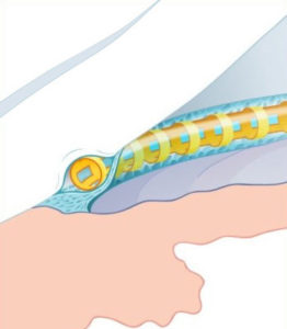 Canaloplasty with the Stegmann Canal Expander®