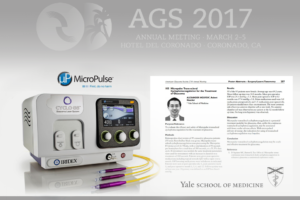 Micropulse Trans-scleral Cyclophotocoagulation for the Treatment of Glaucoma - The Yale Study