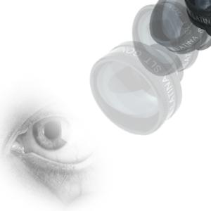 SLT without Gonioscopy lens