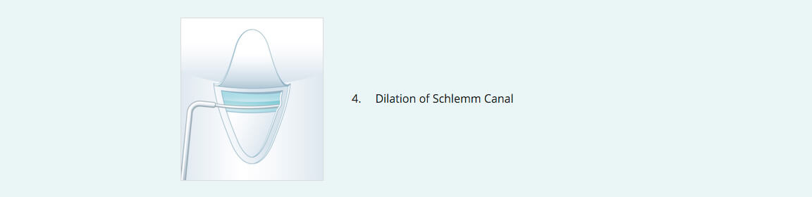 Stegmann Canal Expander® Procedure 4