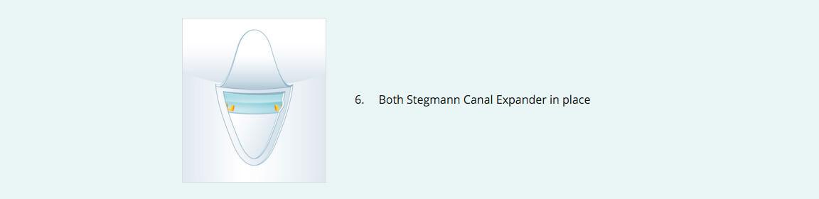 Stegmann Canal Expander® Procedure 6