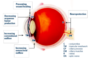 gene therapy for glaucoma