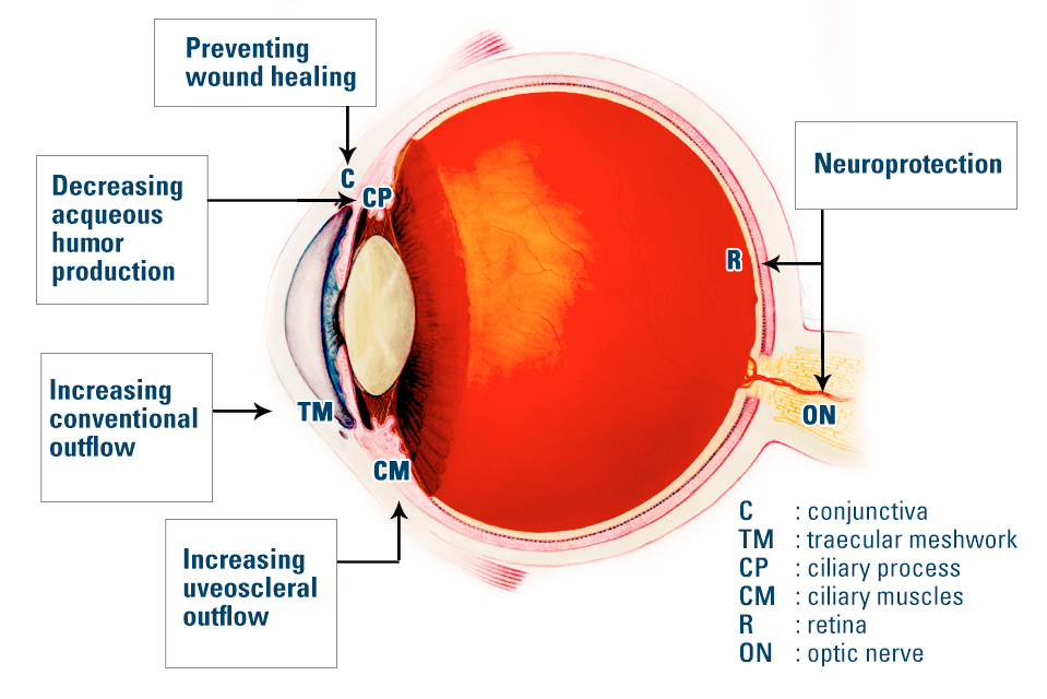 glaucoma gene therapy