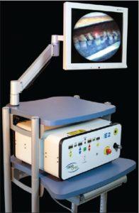 Endoscopic Cyclophotocoagulation (ECP) Glaucoma Surgery