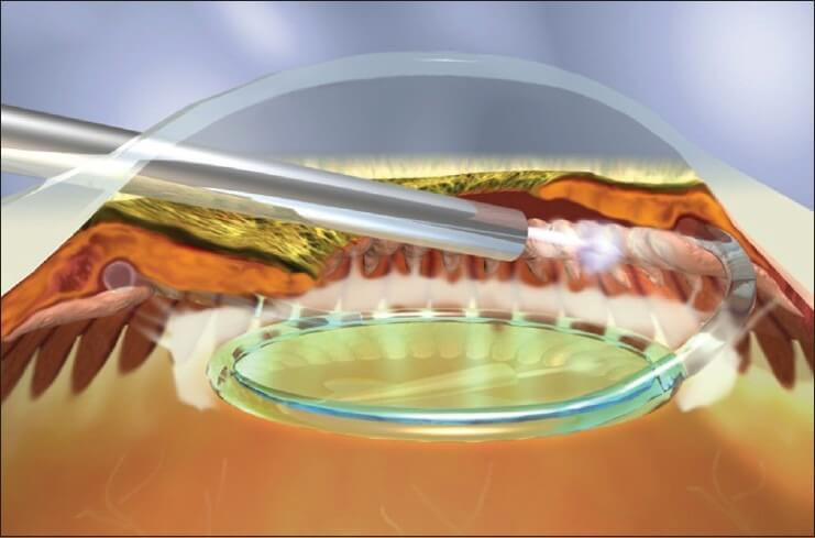 Endoscopic Cyclophotocoagulation (ECP) Glaucoma Surgery Procedure