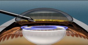 Inflammation after Endoscopic Cyclophotocoagulation (ECP) Glaucoma Surgery