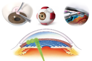 Selective Laser Trabeculoplasty After Incisional Glaucoma Surgery