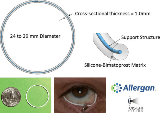 Bimatoprost Ring_Allergan and ForSight