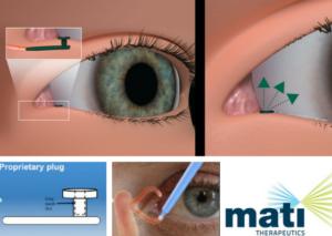 Mati Therapeutics - Latanoprost Plug